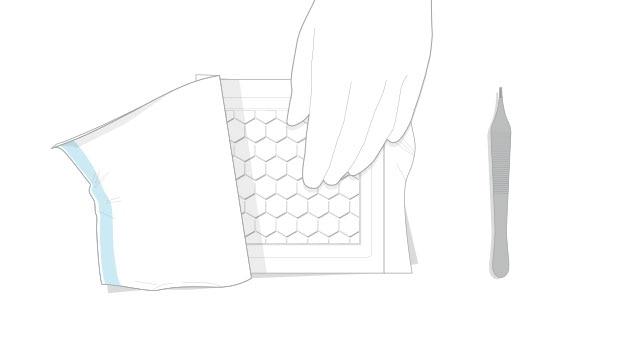 Applikation und Wechsel von Biatain Fiber